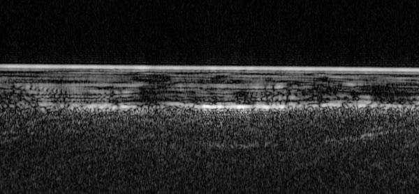 Radar image of ice-dust layers in south pole