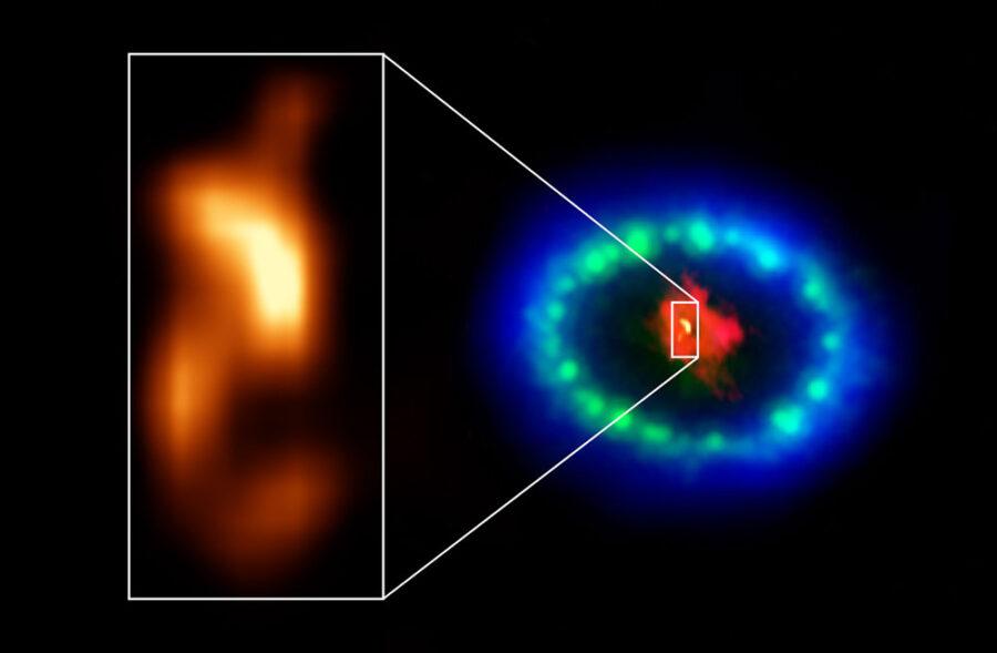 Dust-enshrouded neutron star in Supernova 1987A